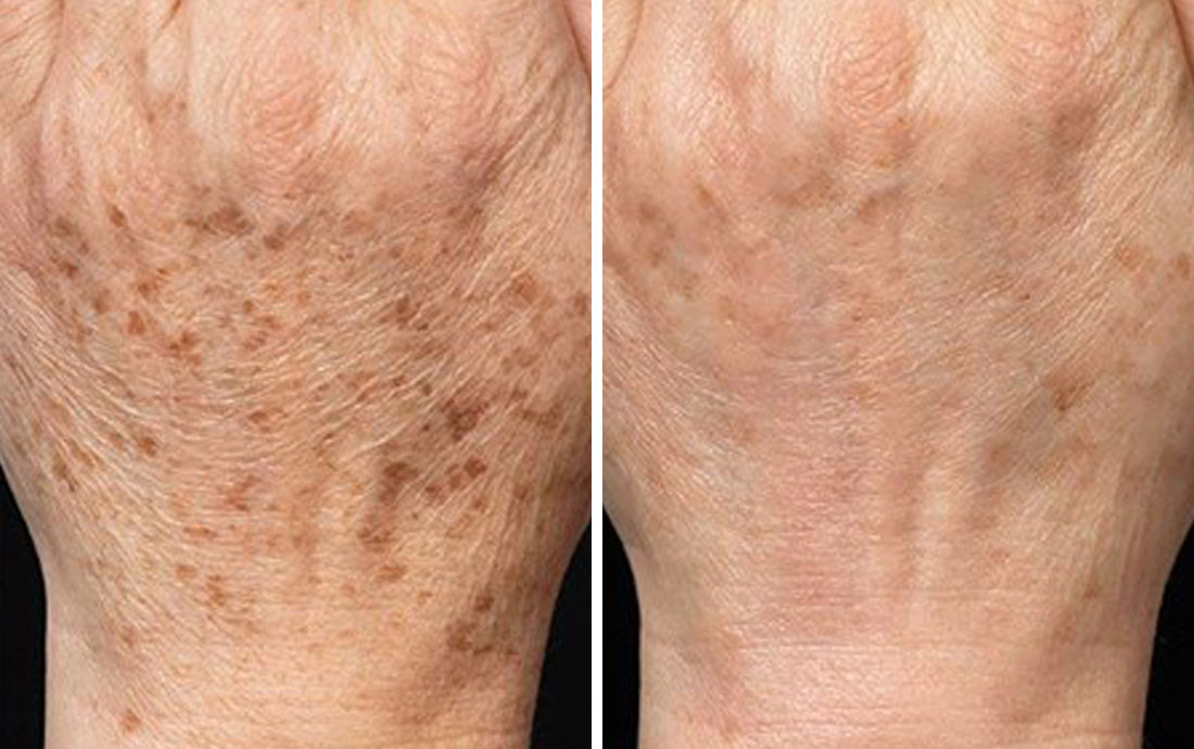 Cryotherapy_Cryopen_age_spots_hands