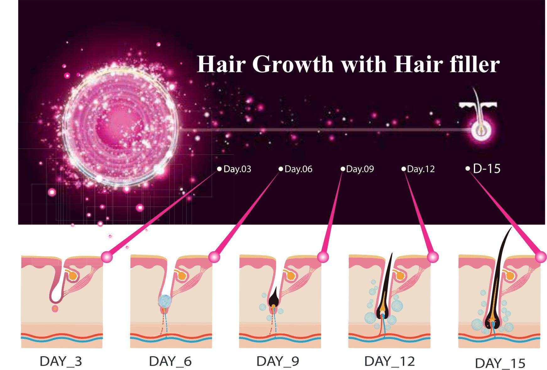 hairfuller1